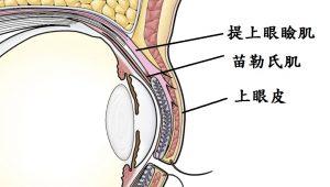 提上眼瞼肌無力構造圖