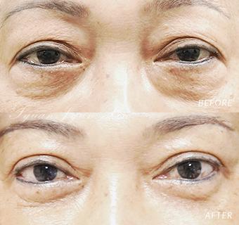 眼袋重修及割雙眼皮的女性術前術後照