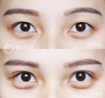 縫雙眼皮女性的術前術後照