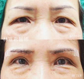 眉下切口術後一週的女性術前術後照
