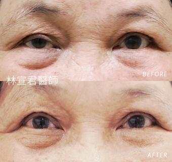 重修雙眼皮及提上眼瞼肌手術的女性術前術後照