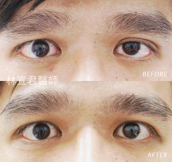 提上眼瞼肌手術的男性術前術後照