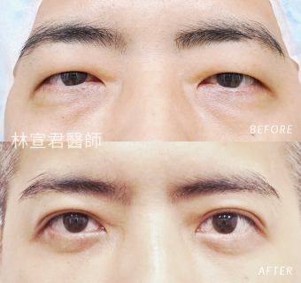 隱形眼袋手術及縫雙眼皮及上眼皮微創抽脂的男性術前術後照