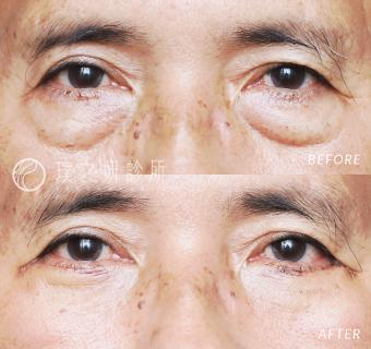 外開眼袋手術後一週的男性術前術後照