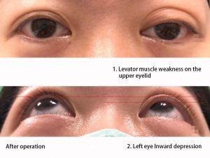 Before the treatment of double eyelids asymmetrical