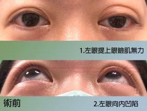 雙眼皮對稱矯正術前照