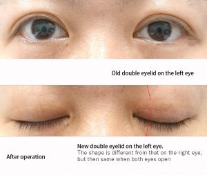 After the treatment of double eyelids asymmetrical