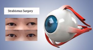 The before&after of strabismus treatment