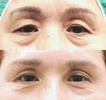 眉下切口術後三個月的女性術前術後照