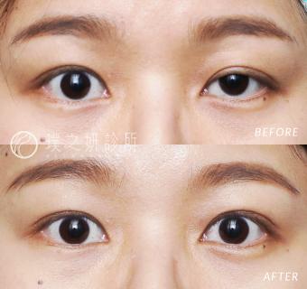 提上眼瞼肌手術後三個月的女性術前術後照