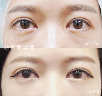 隱形眼袋手術的女性術前術後照