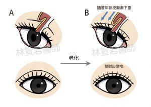 雙眼皮下垂示意圖