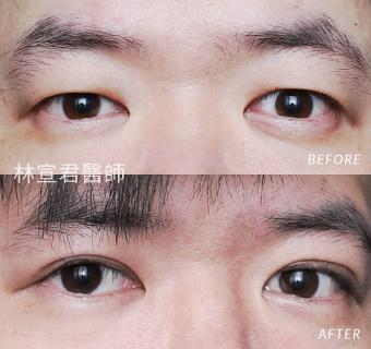 割雙眼皮術後三個月的男性術前術後照