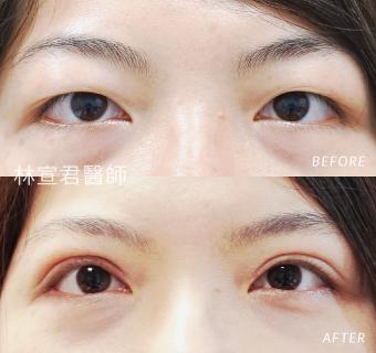 割雙眼皮女性的術前術後照
