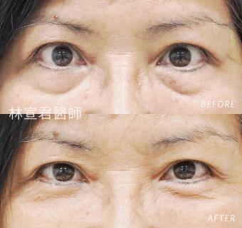 外開眼袋手術的女性術前術後照