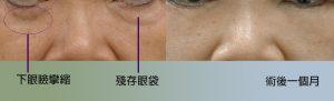 眼袋重修術前術後照