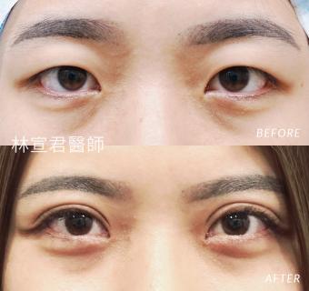 割雙眼皮及開眼頭的女性術前術後照